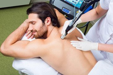 Лазер эпиляция для мужчин: основные отличия